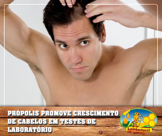 propolis-lab-calvicie