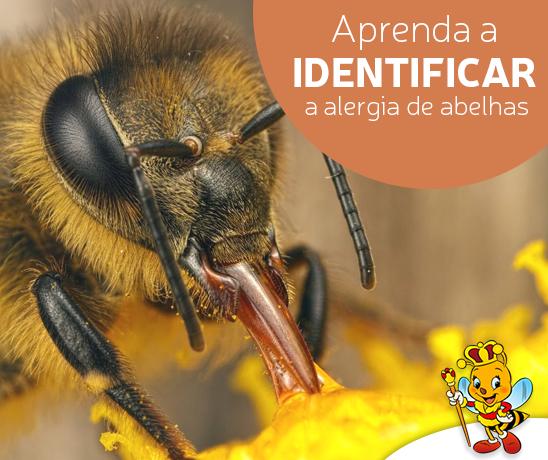 aprenda-a-identificar-a-alergia-de-abelhas